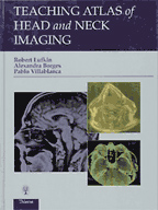 Teaching Atlas of Head and Neck Imaging : Teaching Atlas Series