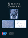 Uterine Cancer - American Cancer Society Atlas of Clinical Oncology