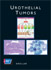Urothelial Tumors - American Cancer Society Atlas of Clinical Oncology