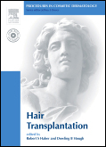 Procedures in Cosmetic Dermatology Series:Hair Transplantation(With DVD)(pcds)