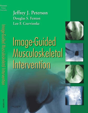 Image Guided Musculoskeletal Intervention