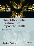 The Orthodontic Treatment of Impacted Teeth