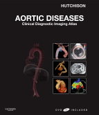 Aortic Diseases - Clinical Diagnostic Imaging Atlas with DVD