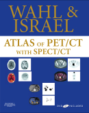 Atlas of PET/CT with SPECT / CT with DVD