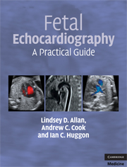 Fetal Echocardiography A Practical Guide