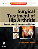 Surgical Treatment of Hip Arthritis: Reconstruction, Replacement & Revision