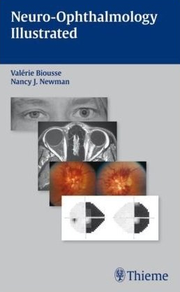 Neuro Ophthalmology Illustrated