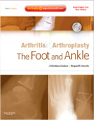 Arthritis and Arthroplasty: The Foot and Ankle - Expert Consult - Online, Print and DVD