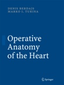 Operative Anatomy of the Heart