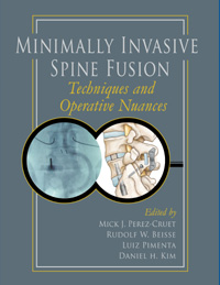 Minimally Invasive Spine Fusion: Techniques and Operative Nuances