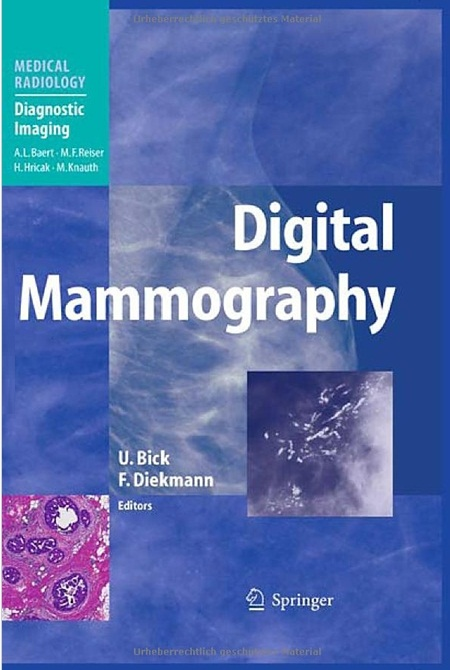 Digital Mammography (Paperback)