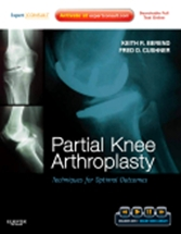 Partial Knee Arthroplasty:Techniques for Optimal Outcomes
