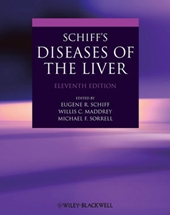 Schiff's Diseases of the Liver,11/e