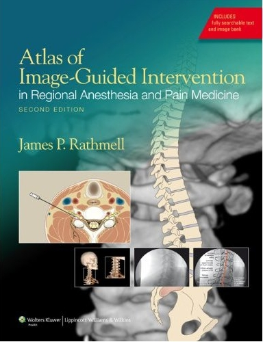 Atlas of Image-Guided Intervention in Regional Anesthesia and Pain Medicine, 2/e