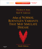 Atlas of Normal Roentgen Variants That May Simulate Disease, 9th Edition
