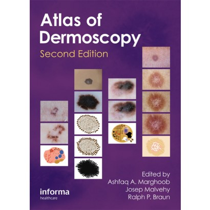 Atlas of Dermoscopy, Second Edition