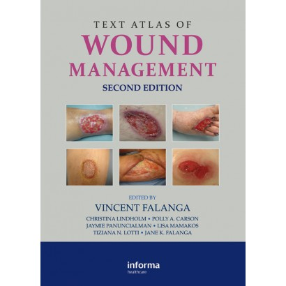 Text Atlas of Wound Management, Second Edition