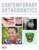 Contemporary Orthodontics, 5e [Hardcover]