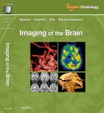 Imaging of the Brain, Expert Radiology Series