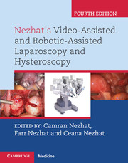 Nezhat's Video-Assisted and Robotic-Assisted Laparoscopy and Hysteroscopy.4/e