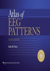 Atlas of EEG Patterns, 2/e