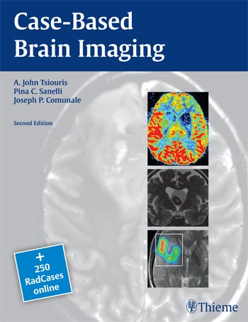 Case-Based Brain Imaging-2판