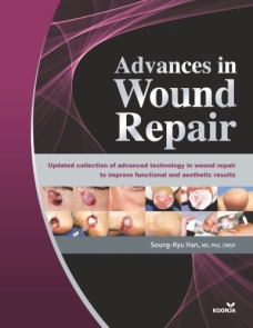 Advances in Wound Repair