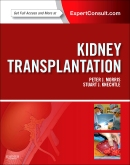 Kidney Transplantation - Principles and Practice, 7th Edition