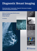 Diagnostic Breast Imaging : Mammography, Ultrasound, MRI, Intervention Procedures