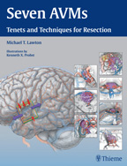 Seven AVMs : Tenets and Techniques for Resection