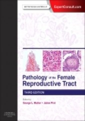 Pathology of the Female Reproductive Tract, 3/e