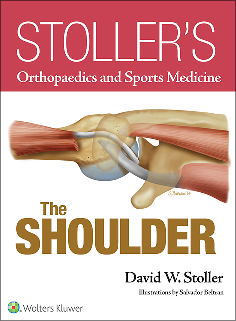 Stoller's Orthopaedics and Sports Medicine: The Shoulder (Print Edition)