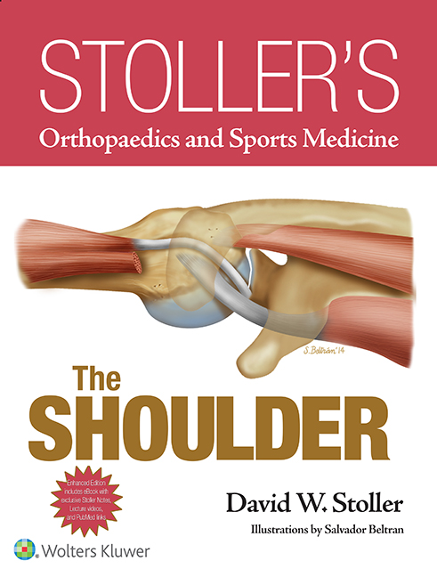 Stoller's Orthopaedics and Sports Medicine: The Shoulder (Print + eBook bundle)