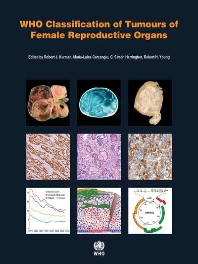 WHO Classification of Tumours of Female Reproductive Organs-4판