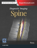 Diagnostic Imaging: Spine, 3e (di-series)
