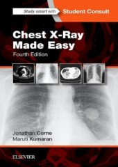 Chest X-Ray Made Easy, 4/e