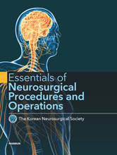 Essentials of Neurosurgical Procedures and Operations