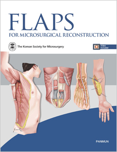 Flaps for Microsurgical Reconstruction