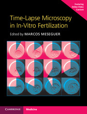 Time-Lapse Microscopy in In-Vitro Fertilization