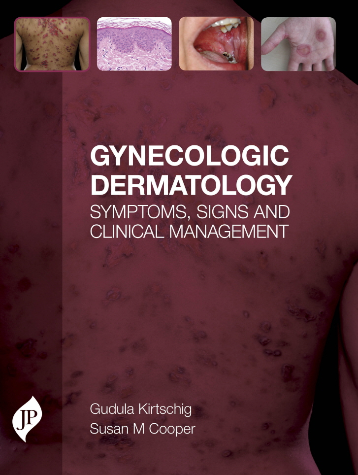 Gynecologic Dermatology: Symptoms, Signs and Clinical Management