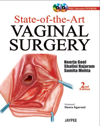State of the Art Vaginal Surgery,2/e(With DVD Rom)