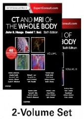 CT and MRI of the Whole Body, 6/e (2Vols)