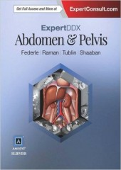 ExpertDDx: Abdomen and Pelvis, 2/e