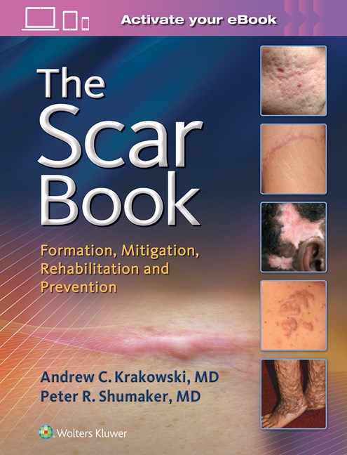 The Scar Book-Scar Formation, Rehabilitation, and Prevention
