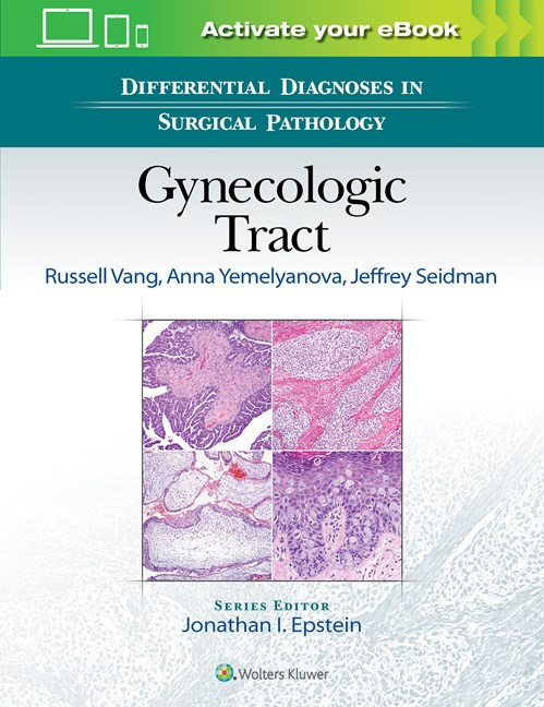 Differential Diagnoses in Surgical Pathology: Gynecologic Tract-1판