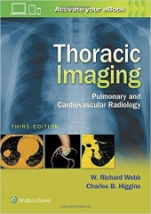 Thoracic Imaging, 3/e