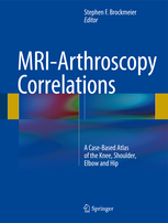 MRI-Arthroscopy Correlations(A Case-Based Atlas of the Knee, Shoulder, Elbow and Hip)