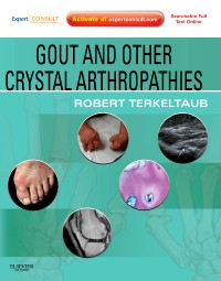 Gout & Other Crystal Arthropathies - Expert Consult: Online and Print