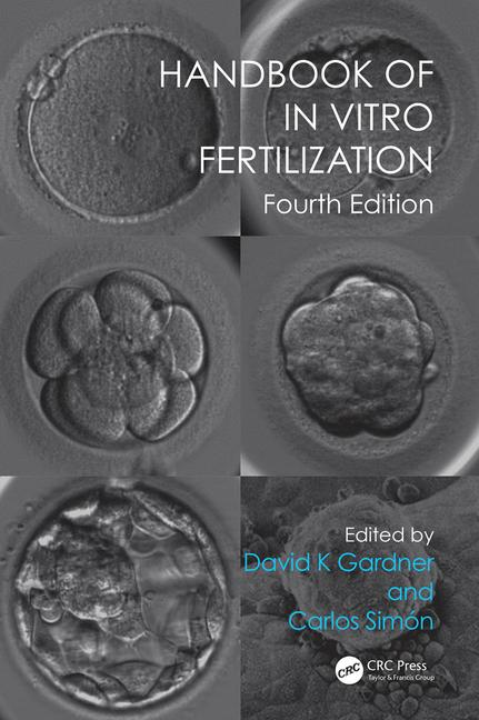 Handbook of In Vitro Fertilization, Fourth Edition(paperback)