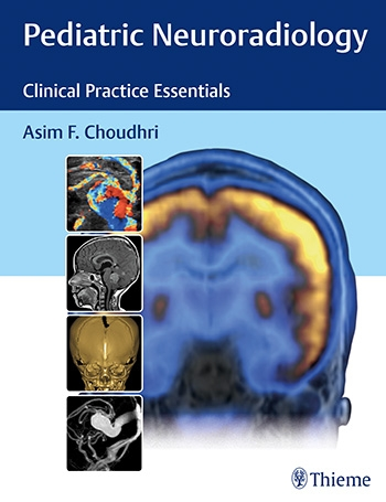 Pediatric Neuroradiology The Essentials